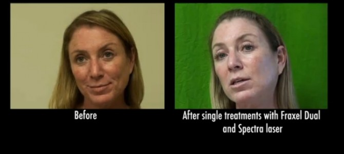 Achieving Freedom From Wrinkles & Pigmentation With Lasers