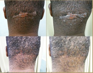 Before and after treatment pictures of patient with Acne Keloidalis Nuchae
