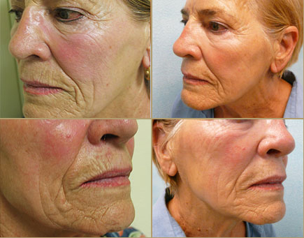 nonsurgical-face-lift-options