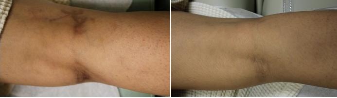 leg vein removal