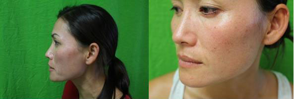 Los Angeles patient before and after her Fraxel Dual treatment for brown spots