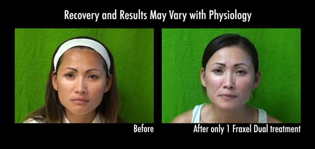 Los Angeles patient before and after laser rejuvenation with Fraxel laser