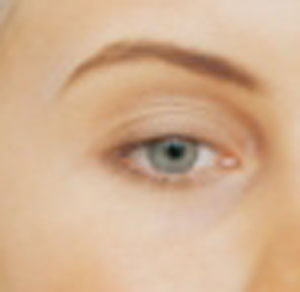 Los Angeles non-surgical blepharoplasty can correct signs of aging around the eyes for a more youthful appearance