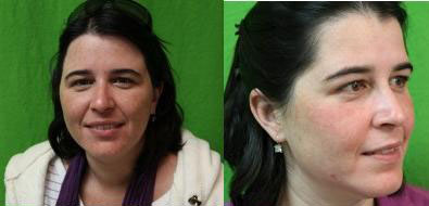 acne and acne scar treatment with fraxel laser