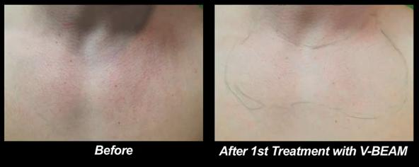 Los Angeles patient before and after treatment of Rosacea with the Vbeam laser