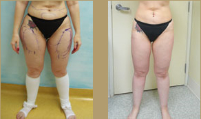 Los Angeles patient before and after liposuction procedure