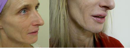 Los Angeles patient before and after her lip augmentation procedure with Juvederm