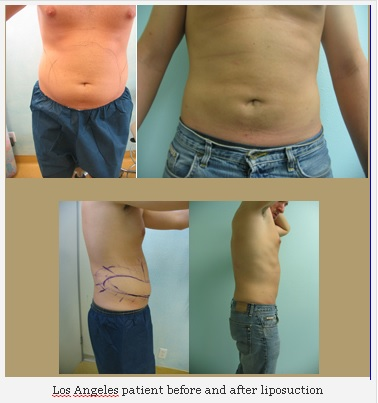Los Angeles Patient Before and After liposuction