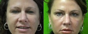 Before and After 2 Fraxel Dual Age Spot Treatment in Los Angeles