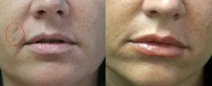 Before and After 3 of Removing Prominent Age Spot with Fraxel Dual