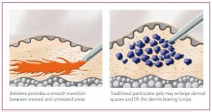 image courtesy of Merzpharma.co.uk The difference between Belotero and comparative dermal fillers