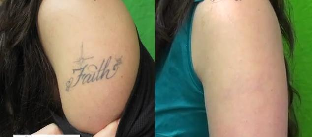 Finetouch dermatology for Best tattoo removal los angeles