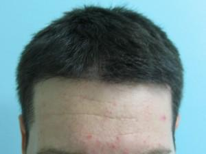 Before hair transplant.