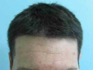 Before hair transplant.