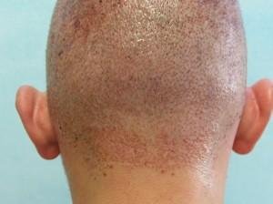 Donor area after hair transplant