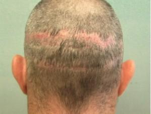 linear scars resulting from strip surgery