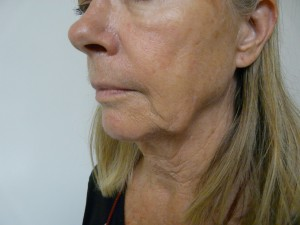 Los Angeles patient with jowls who was treated by Radiesse to remove them