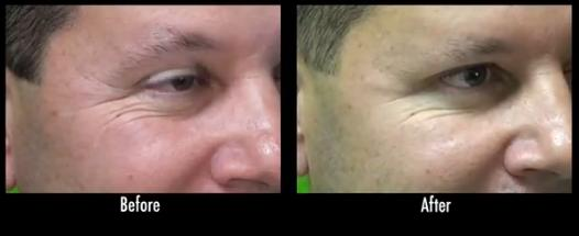 Before and after results of Dysport injection used to treat crows feet wrinkles