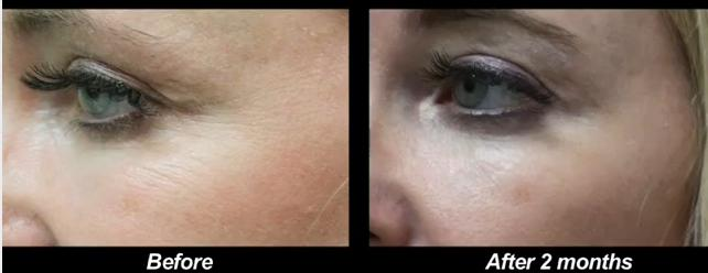 Before and after images of Los Angeles patient who received Botox to get rid of crows feet