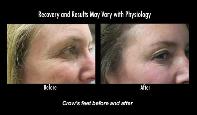 Botox was able to soften the appearance of crows feet wrinkles around this patient's eyes