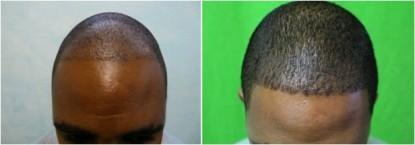 Los-Angeles-Best-FUE-Hair-Transplant-101