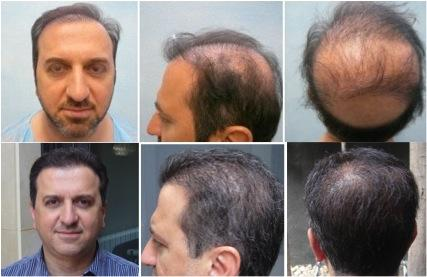 Los-Angeles-Best-FUE-Hair-Transplant-103