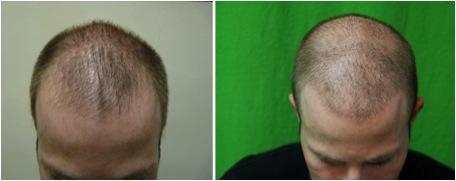 Los-Angeles-Best-FUE-Hair-Transplant-104