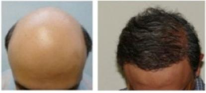 Los-Angeles-Best-FUE-Hair-Transplant-107