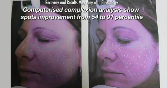 Digital skin analysis results of Los Angeles patient who received Fraxel Dual for age spots removal