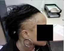 Traction alopecia is a common source of hair loss for African American women.