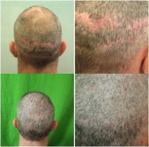 Strip scar corrected using follicular unit extraction.