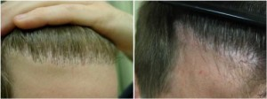 Hairline refinement using FUE at a Los Angeles hair restoration clinic.