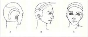 los-angeles-hair-restoration-surgery