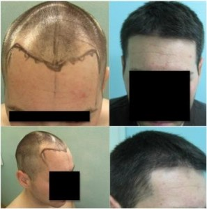 Patient with a natural looking hairline and temple restoration