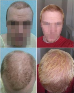 Before and after pictures of patient's procedure which restored normal hair density on top of his head