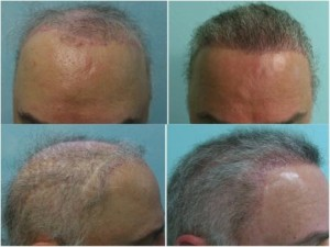 Dr. Umar achieved successful coverage and corrected botched results  for this patient using advanced FUE methods