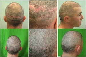 Strip scars left this patient with very minimal head donor hair. However coverage and great cosmetic results were achieved using body hair transplant methods