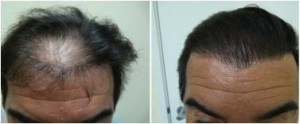 2050 graft hair transplant repair performed with uGraft