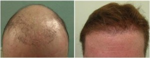 hair transplant repair procedure with donor follicles extracted from the body