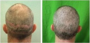 Successful hair transplant repair that covered up strip scars
