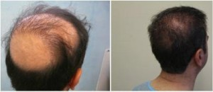 Patient with poorly angled hair from past procedure was able to restore a normal appearance with his hair transplant repair