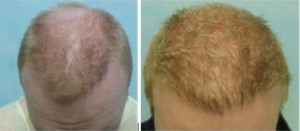 Assymetrical hairline was fixed with hair transplant repair