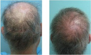 Patient who needed hair transplant repair to conceal strip scars and create a new hairline.