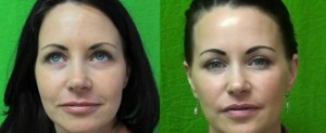 Before and after pictures of Los Angeles patient who had Radiesse injected to treat her laugh lines.