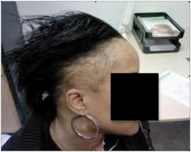 Severe traction alopecia