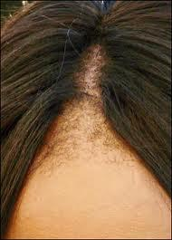 Traction alopecia caused by continual weave wearing.