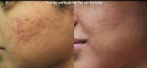 Los Angeles acne- Clearing existing acne is important for successful acne scar removal results. This can be achieved with the Spectra laser