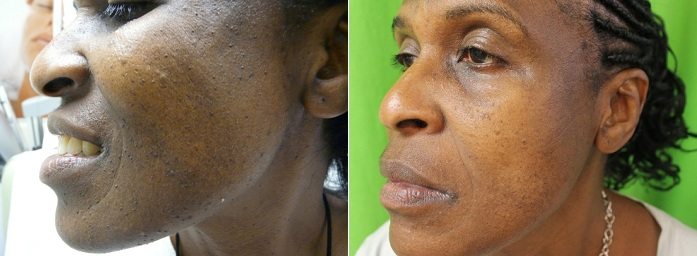 Los Angeles Dermatosa Papulosa Nigra Patient Before and After Procedure