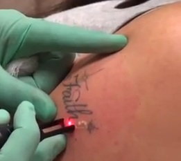 tattoo removal cream reddit