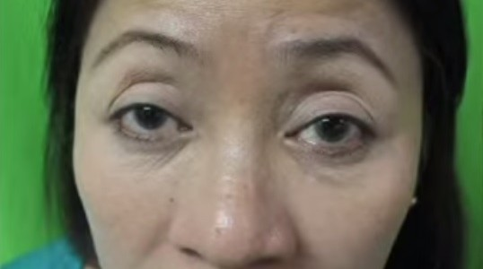 Results of Belotero For Forehead and Frown Line Wrinkles
